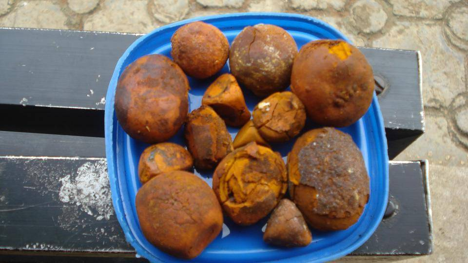 home remedies for gallstones in pancreas